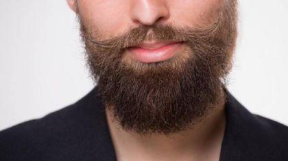 barba a chiazze rimedi